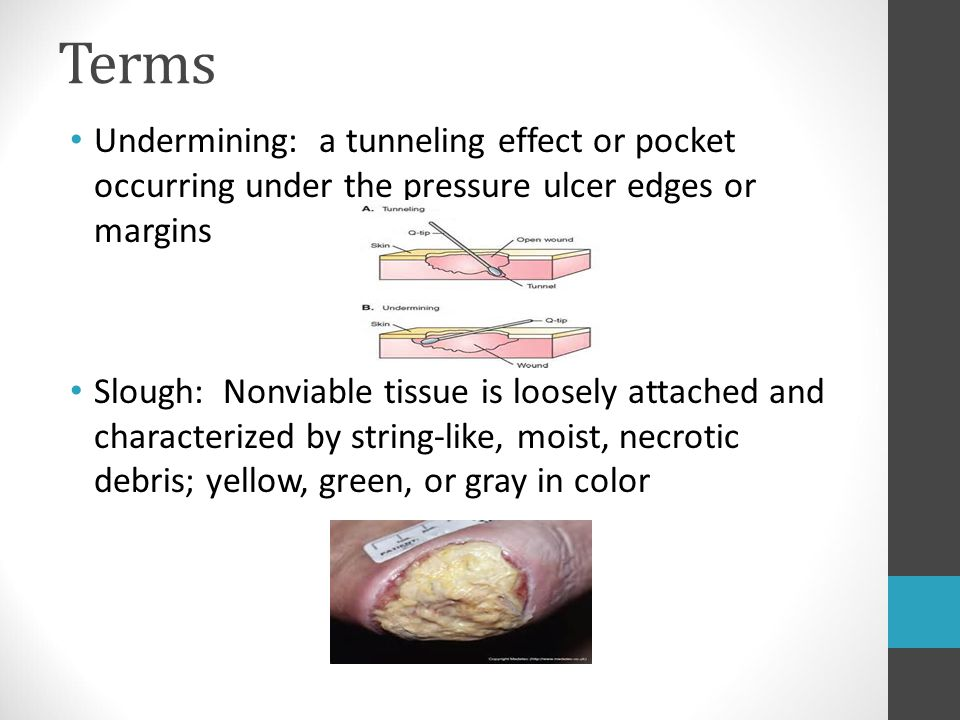 Terms Undermining: a tunneling effect or pocket occurring under the pressure ulcer edges or margins.