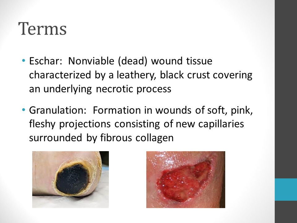Terms Eschar: Nonviable (dead) wound tissue characterized by a leathery, black crust covering an underlying necrotic process.