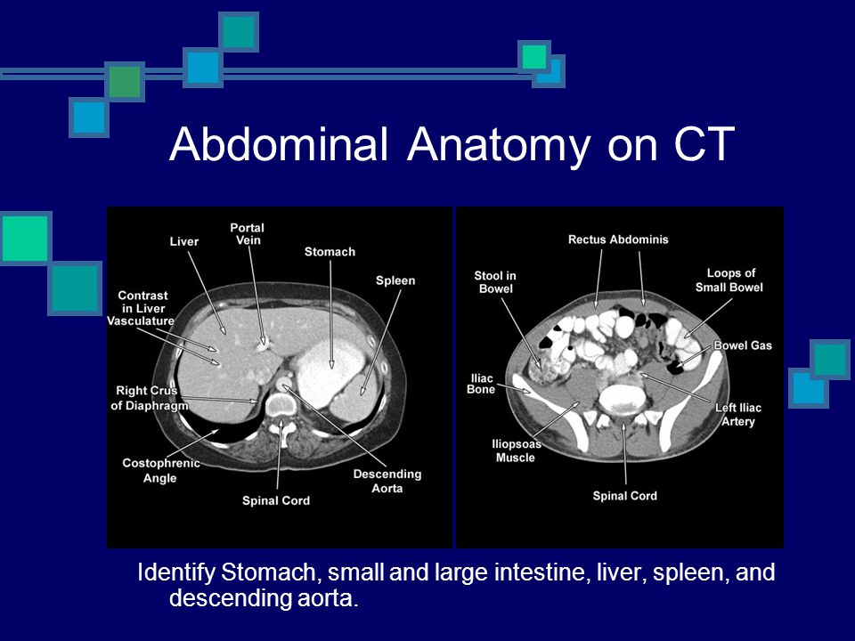 Abdominal Anatomy on CT