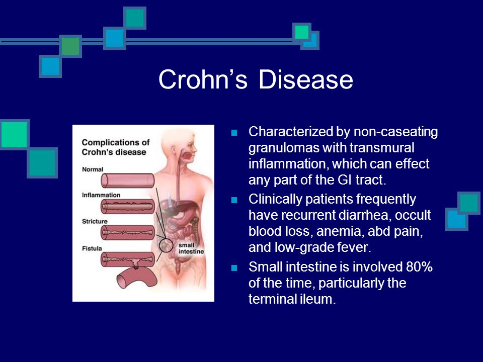Crohn's Disease Characterized by non-caseating granulomas with transmural inflammation, which can effect any part of the GI tract.
