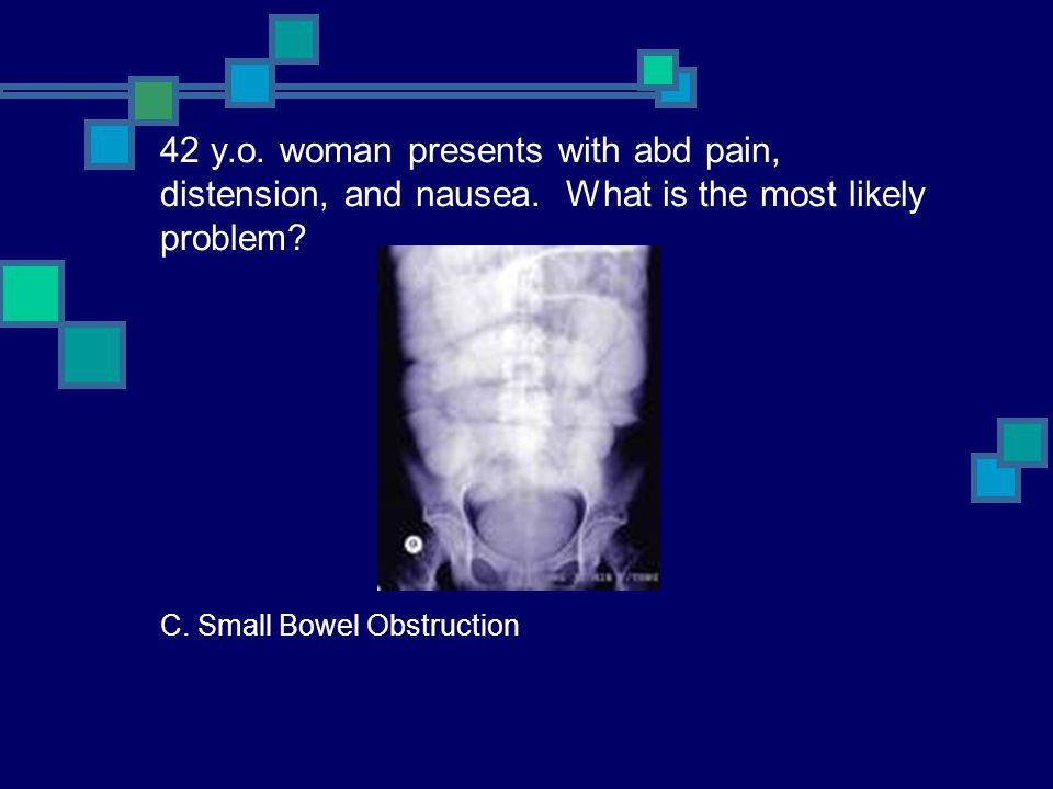 42 y. o. woman presents with abd pain, distension, and nausea
