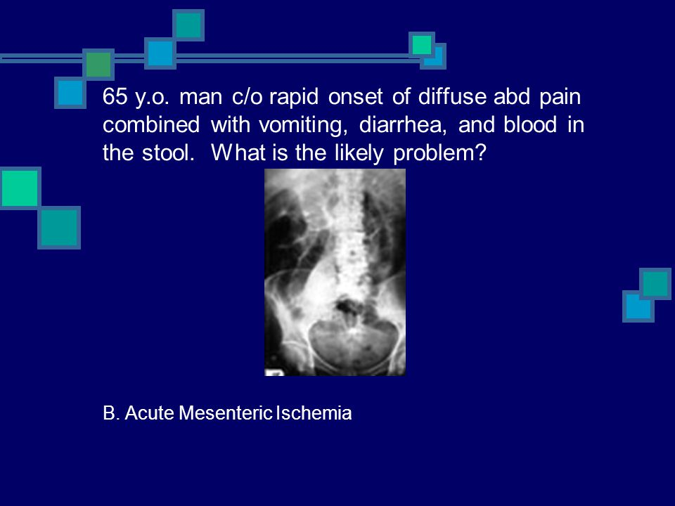65 y.o. man c/o rapid onset of diffuse abd pain combined with vomiting, diarrhea, and blood in the stool. What is the likely problem