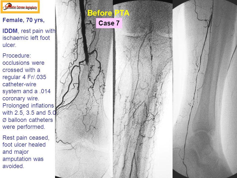 Before PTA Case 7 Female, 70 yrs,