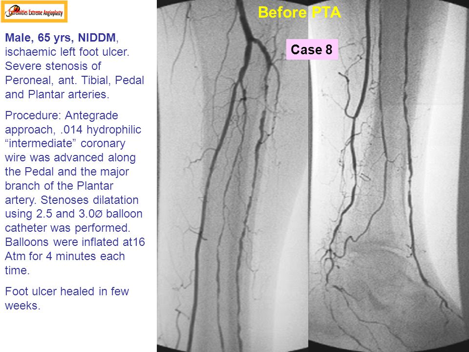 Before PTA Male, 65 yrs, NIDDM, ischaemic left foot ulcer. Severe stenosis of Peroneal, ant. Tibial, Pedal and Plantar arteries.