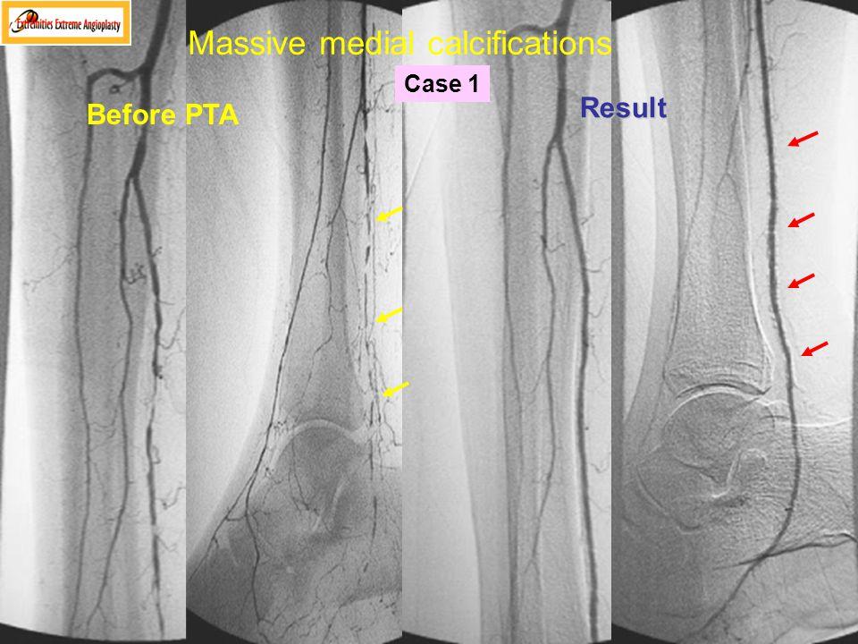 Massive medial calcifications