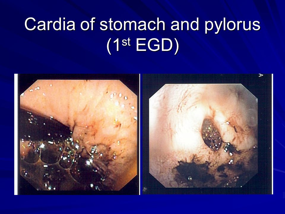 Cardia of stomach and pylorus (1st EGD)