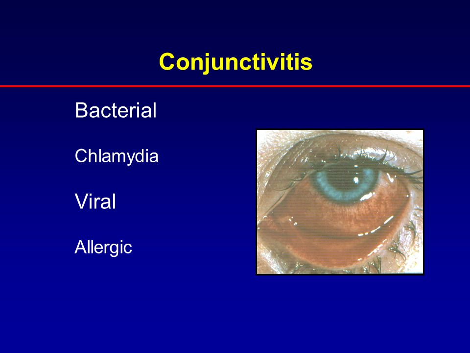 Conjunctivitis Bacterial Chlamydia Viral Allergic