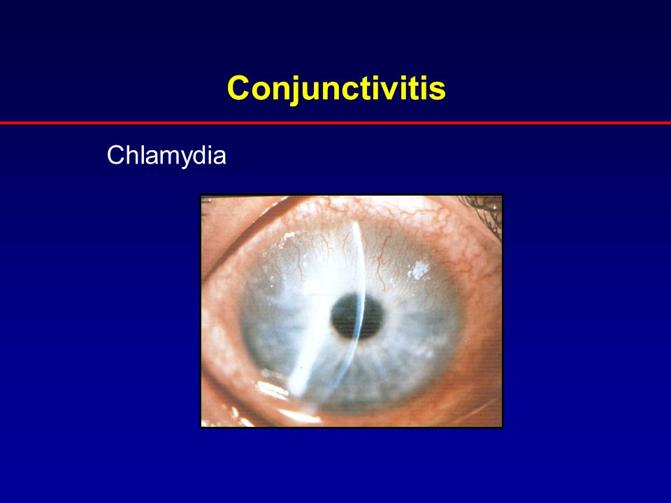 Conjunctivitis Chlamydia