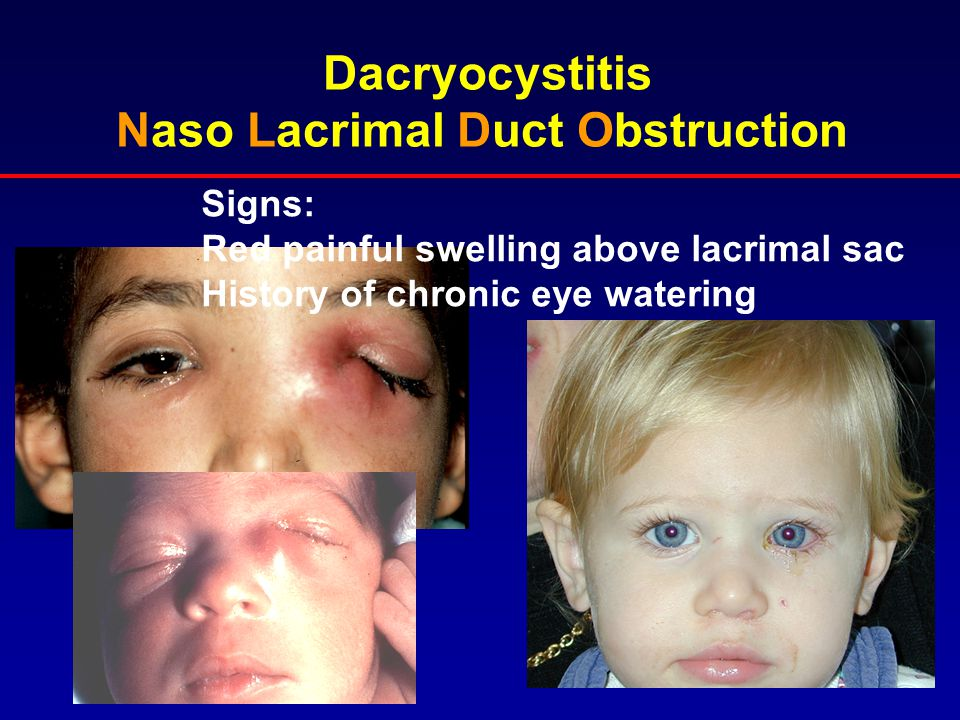 Dacryocystitis Naso Lacrimal Duct Obstruction