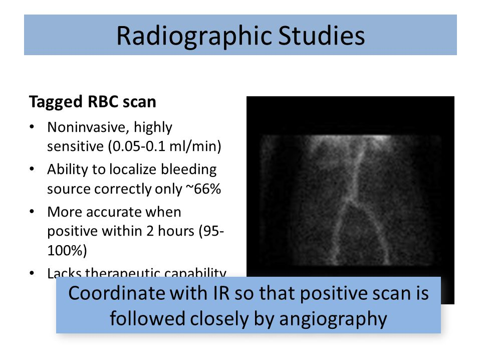 Radiographic Studies Tagged RBC scan. Noninvasive, highly sensitive (0.05-0.1 ml/min) Ability to localize bleeding source correctly only ~66%