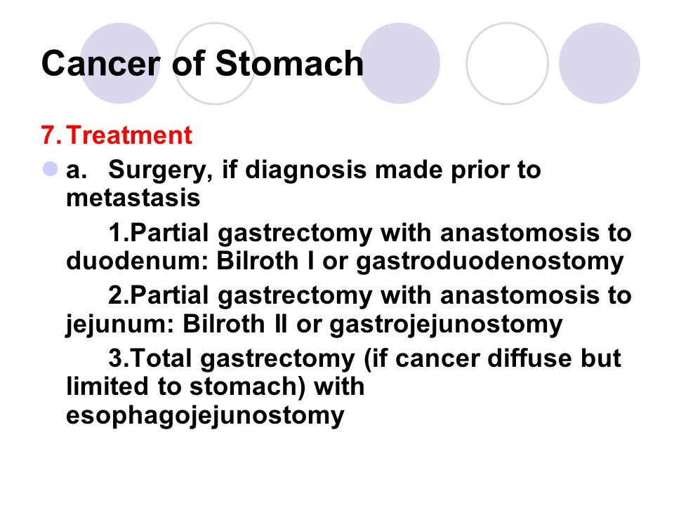 Cancer of Stomach 7. Treatment
