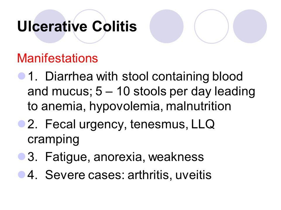 Ulcerative Colitis Manifestations