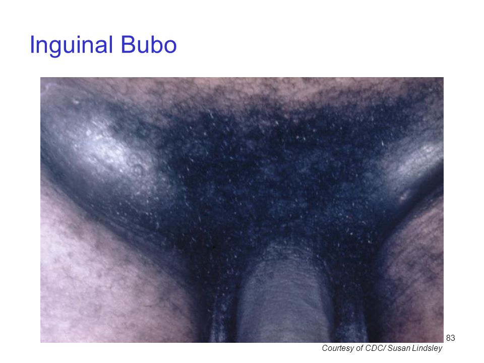 Inguinal Bubo Courtesy of CDC/ Susan Lindsley
