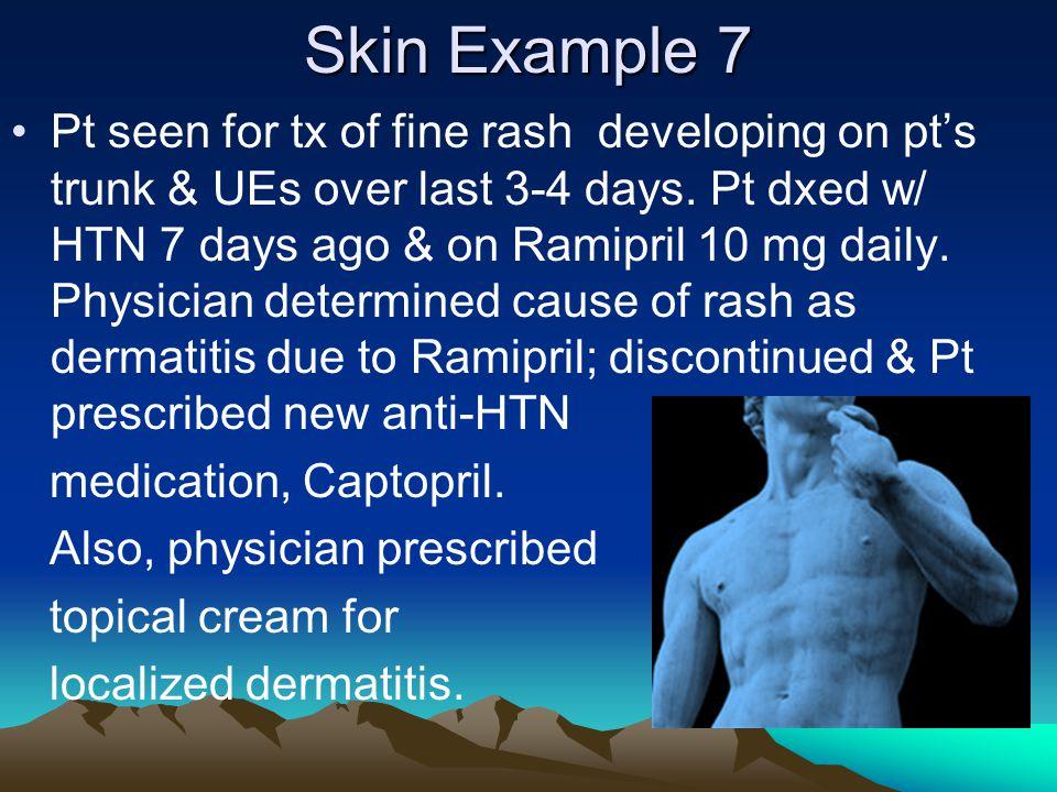 Skin Example 7