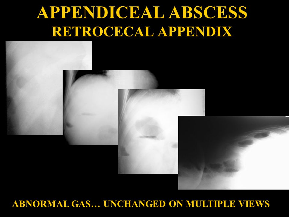 APPENDICEAL ABSCESS RETROCECAL APPENDIX