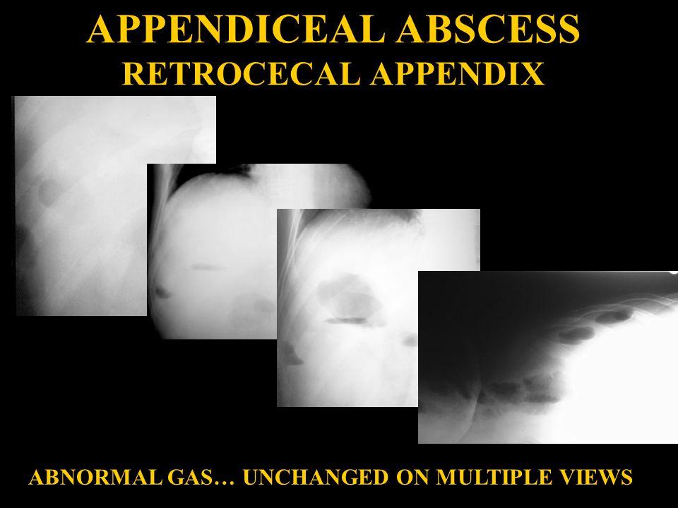 APPENDICEAL ABSCESS RETROCECAL APPENDIX