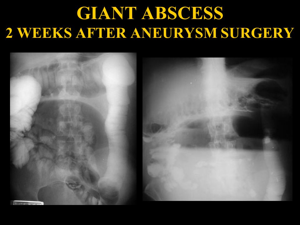 GIANT ABSCESS 2 WEEKS AFTER ANEURYSM SURGERY