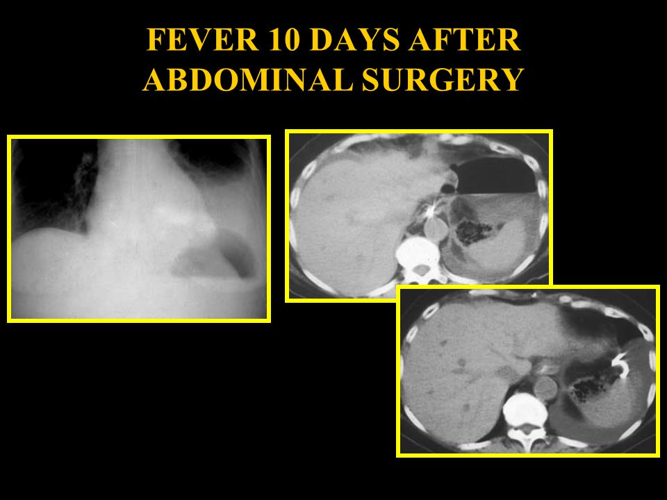 FEVER 10 DAYS AFTER ABDOMINAL SURGERY