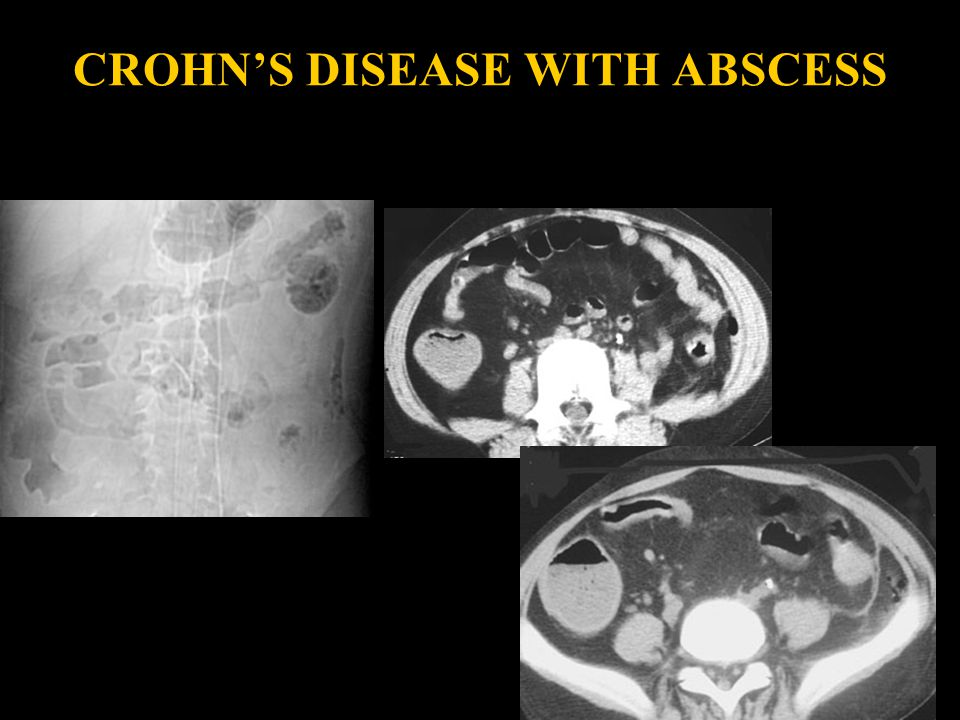 CROHN'S DISEASE WITH ABSCESS