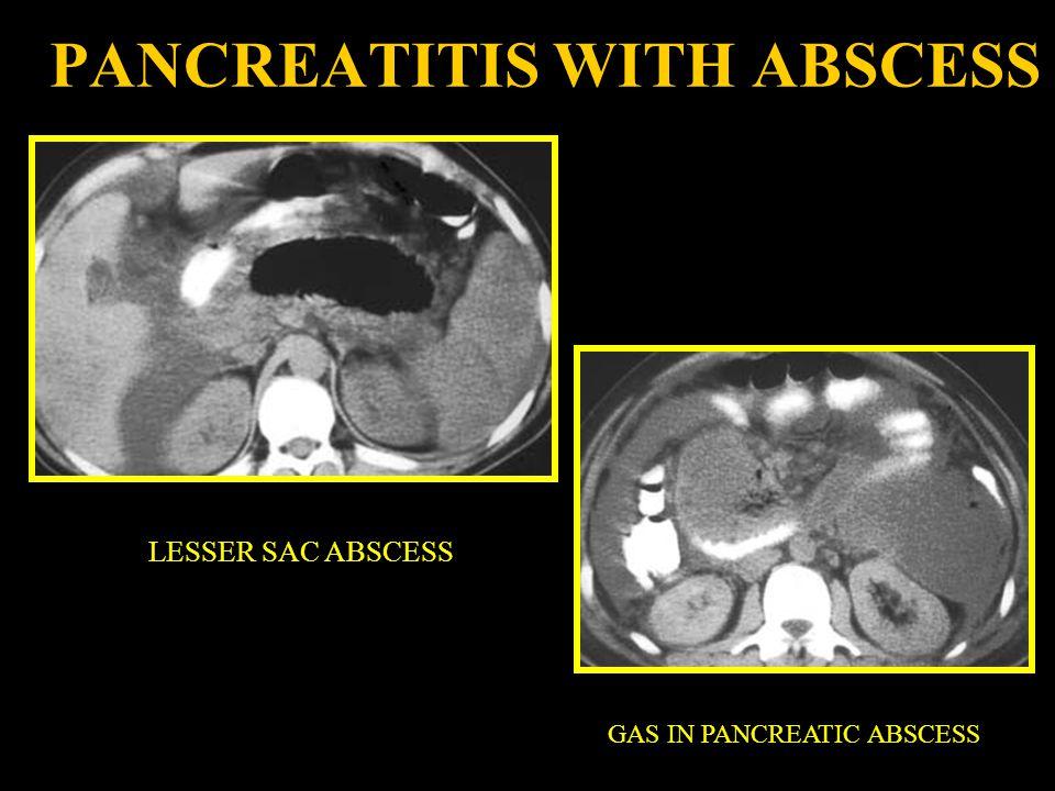 PANCREATITIS WITH ABSCESS