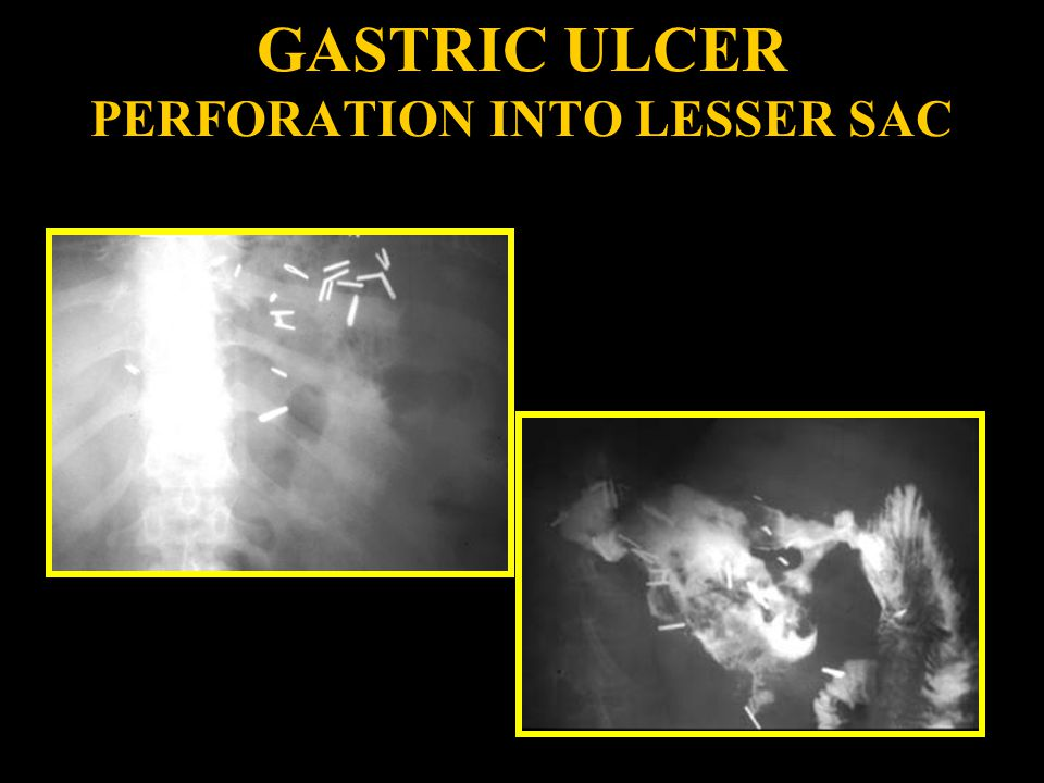 GASTRIC ULCER PERFORATION INTO LESSER SAC