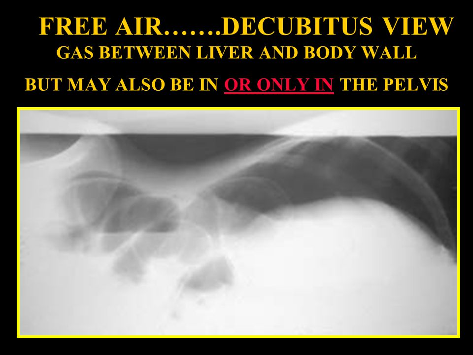 FREE AIR…….DECUBITUS VIEW GAS BETWEEN LIVER AND BODY WALL BUT MAY ALSO BE IN OR ONLY IN THE PELVIS