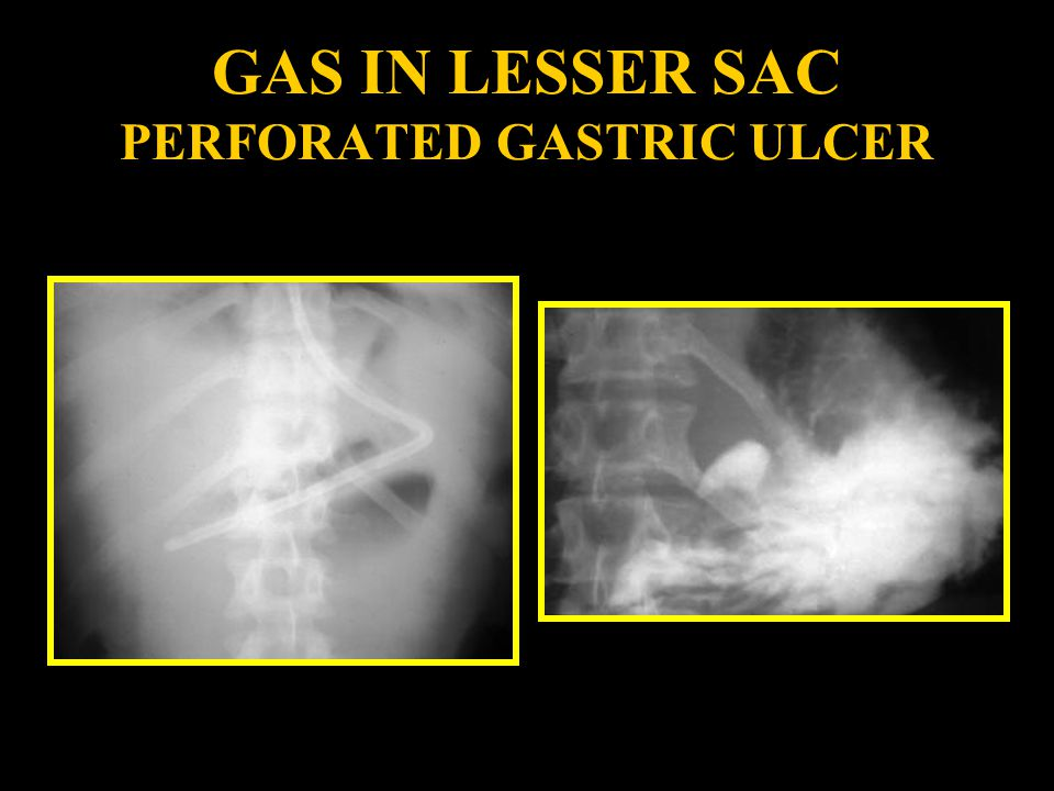 GAS IN LESSER SAC PERFORATED GASTRIC ULCER