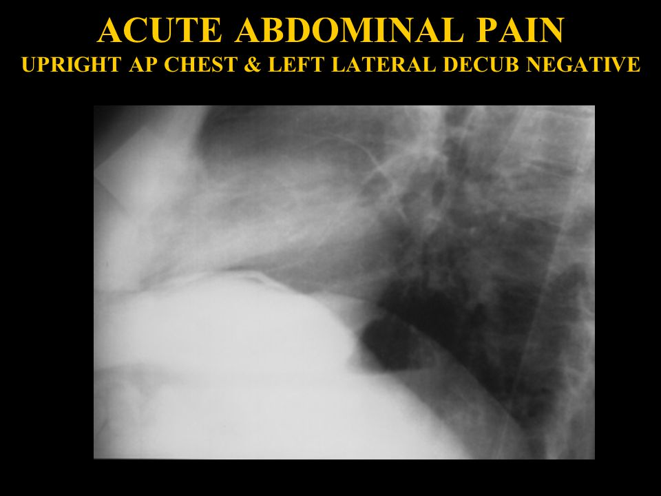 ACUTE ABDOMINAL PAIN UPRIGHT AP CHEST & LEFT LATERAL DECUB NEGATIVE
