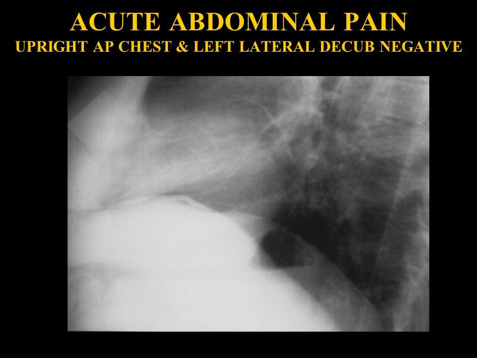 ACUTE ABDOMINAL PAIN UPRIGHT AP CHEST & LEFT LATERAL DECUB NEGATIVE