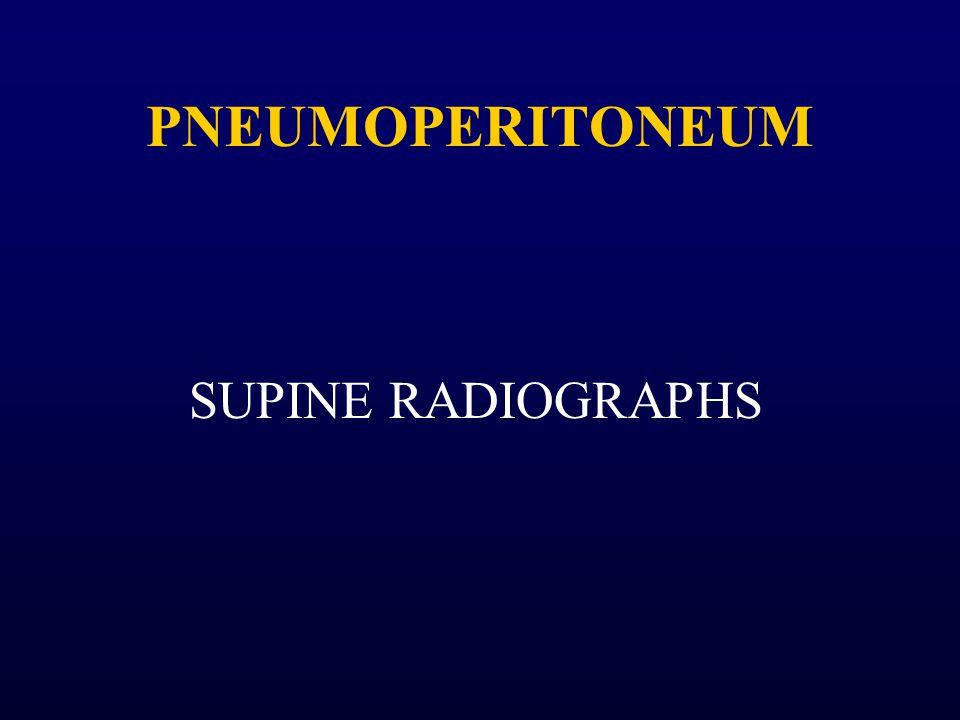 PNEUMOPERITONEUM SUPINE RADIOGRAPHS