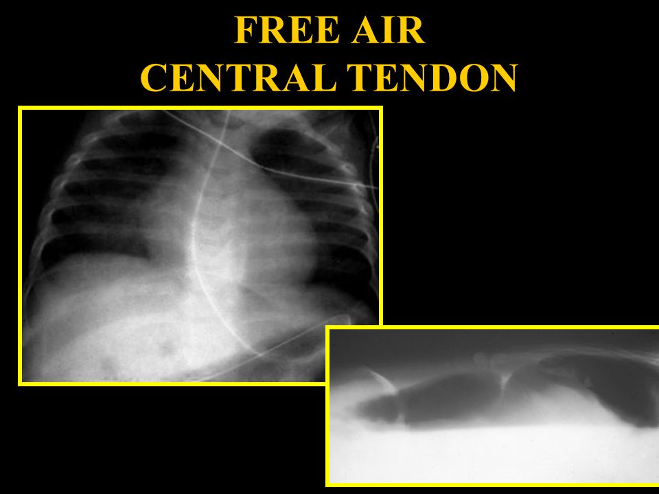 FREE AIR CENTRAL TENDON