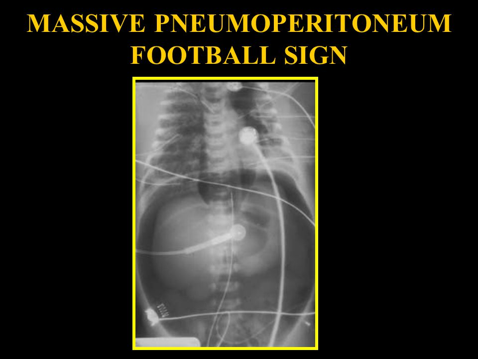 MASSIVE PNEUMOPERITONEUM FOOTBALL SIGN