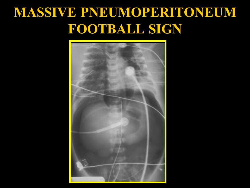 MASSIVE PNEUMOPERITONEUM FOOTBALL SIGN