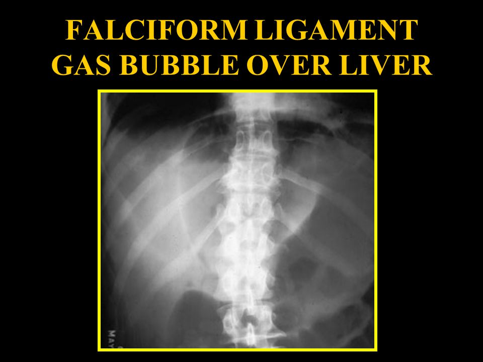 FALCIFORM LIGAMENT GAS BUBBLE OVER LIVER