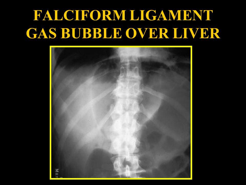 FALCIFORM LIGAMENT GAS BUBBLE OVER LIVER