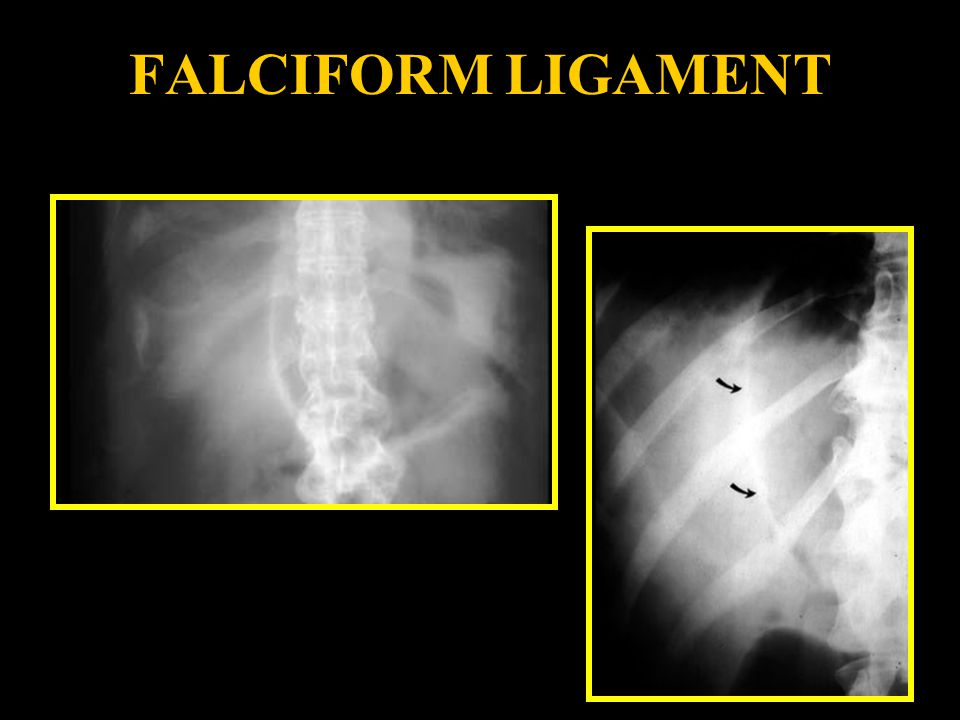 FALCIFORM LIGAMENT