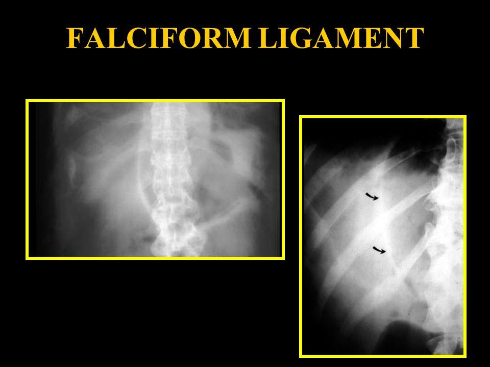 FALCIFORM LIGAMENT