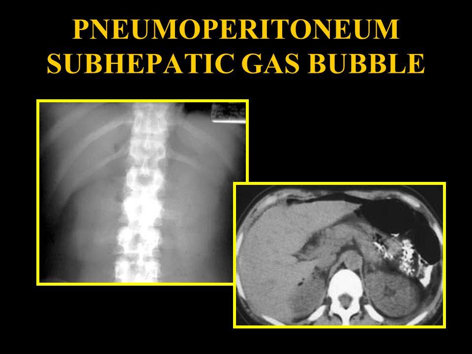 PNEUMOPERITONEUM SUBHEPATIC GAS BUBBLE