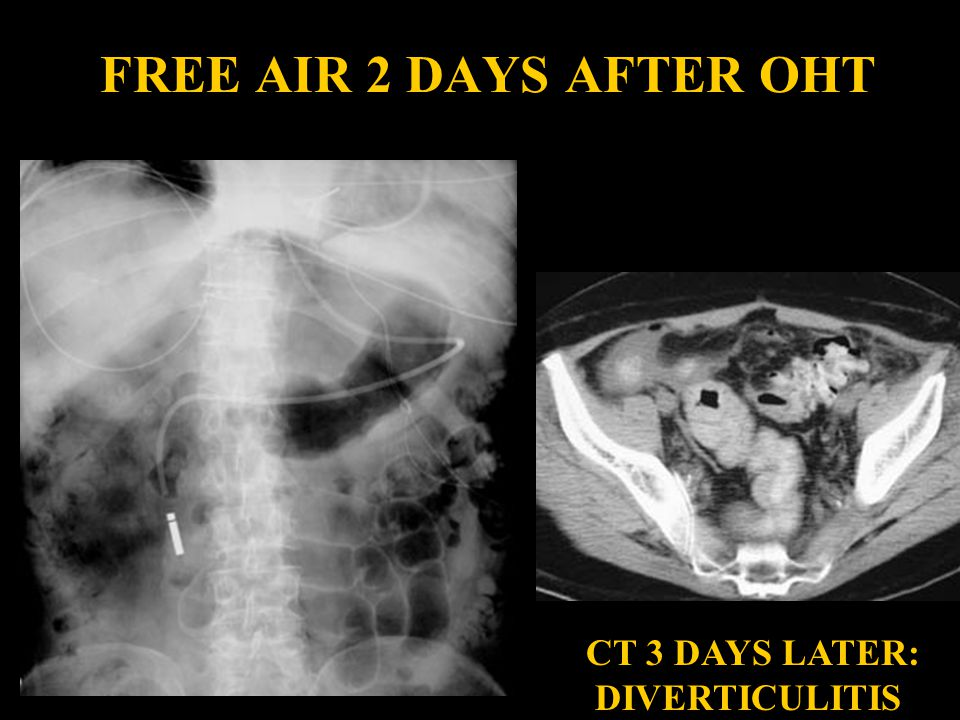 FREE AIR 2 DAYS AFTER OHT CT 3 DAYS LATER: DIVERTICULITIS