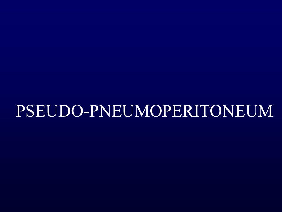 PSEUDO-PNEUMOPERITONEUM