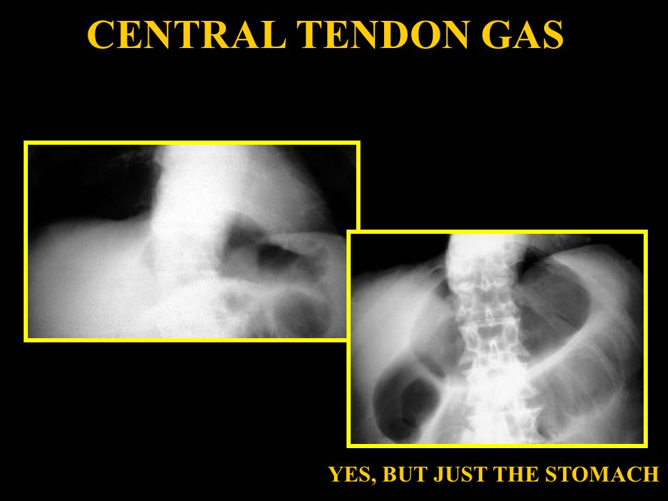 CENTRAL TENDON GAS YES, BUT JUST THE STOMACH