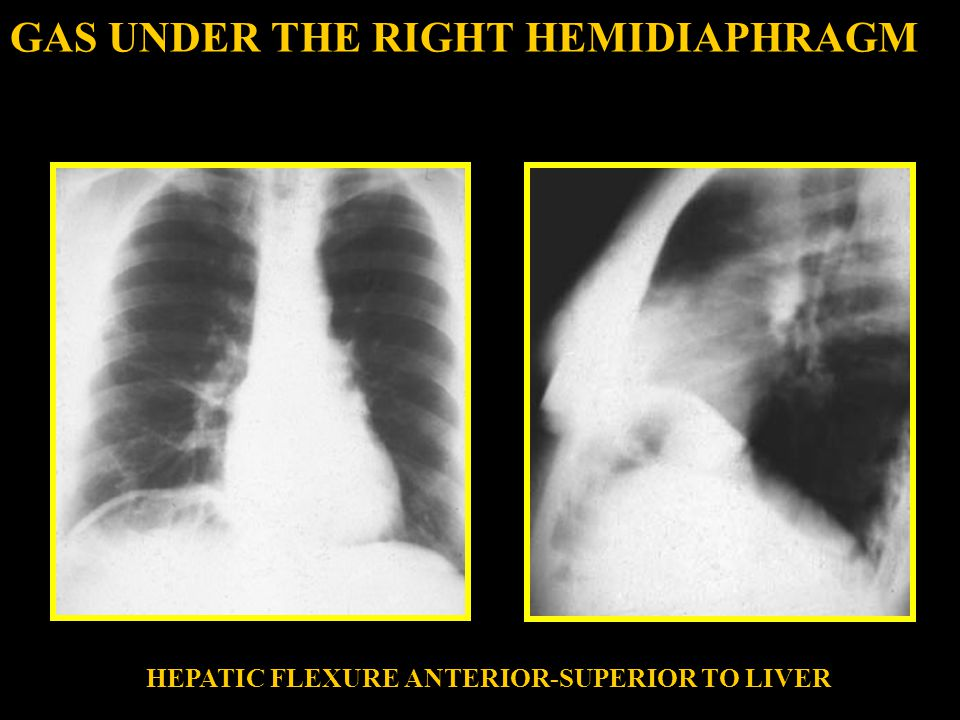 GAS UNDER THE RIGHT HEMIDIAPHRAGM