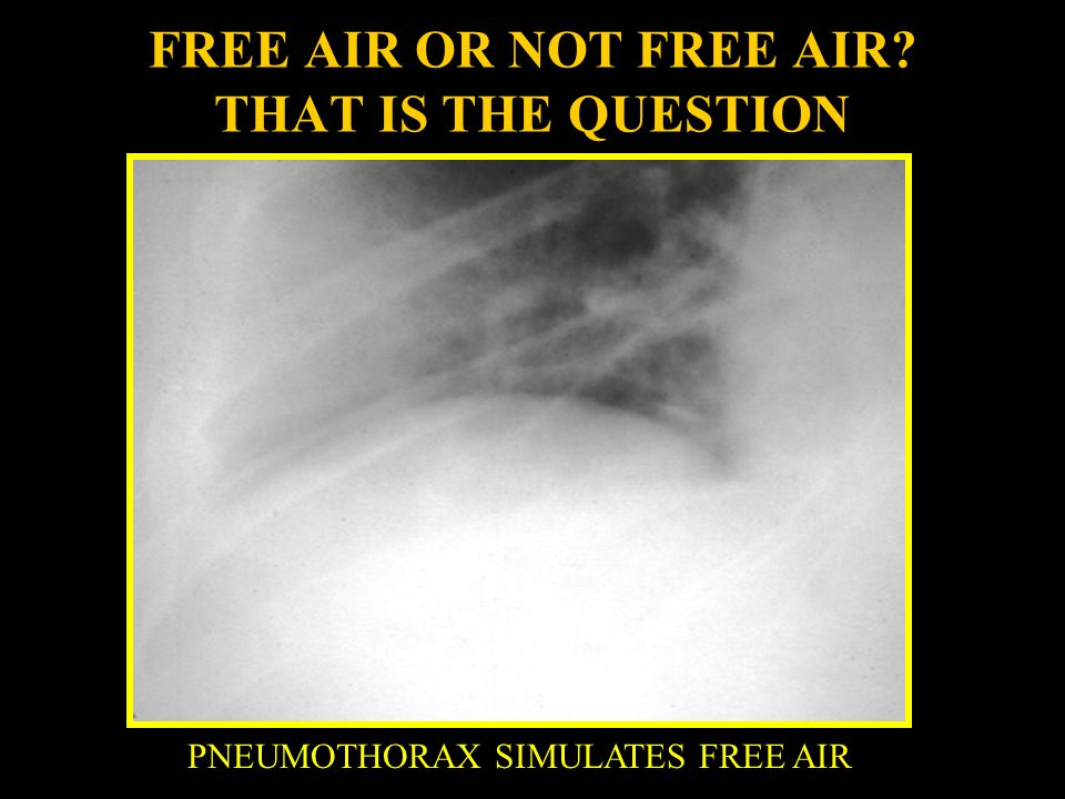 FREE AIR OR NOT FREE AIR THAT IS THE QUESTION