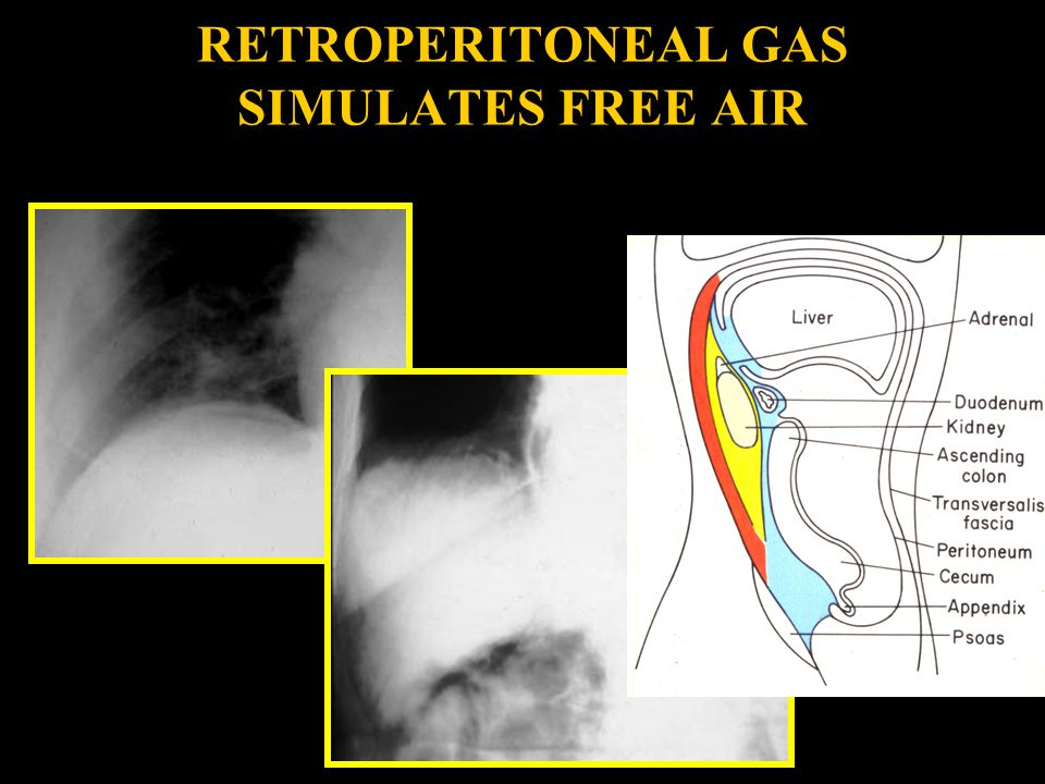 RETROPERITONEAL GAS SIMULATES FREE AIR