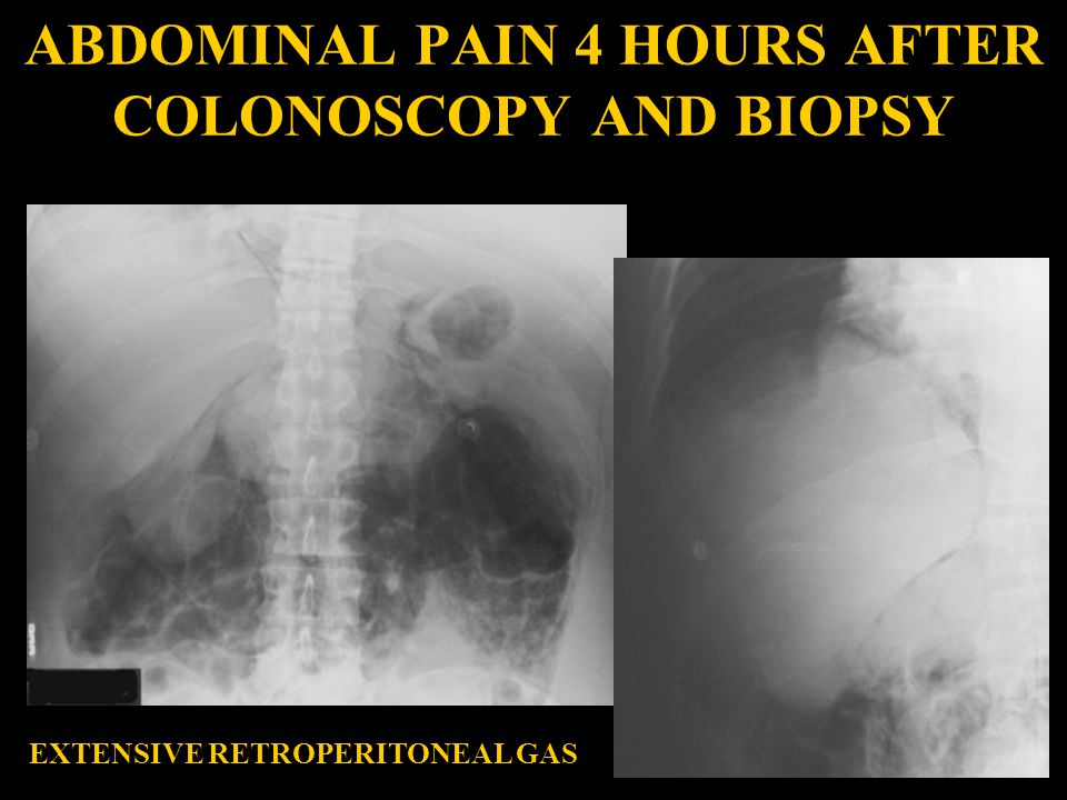 ABDOMINAL PAIN 4 HOURS AFTER COLONOSCOPY AND BIOPSY
