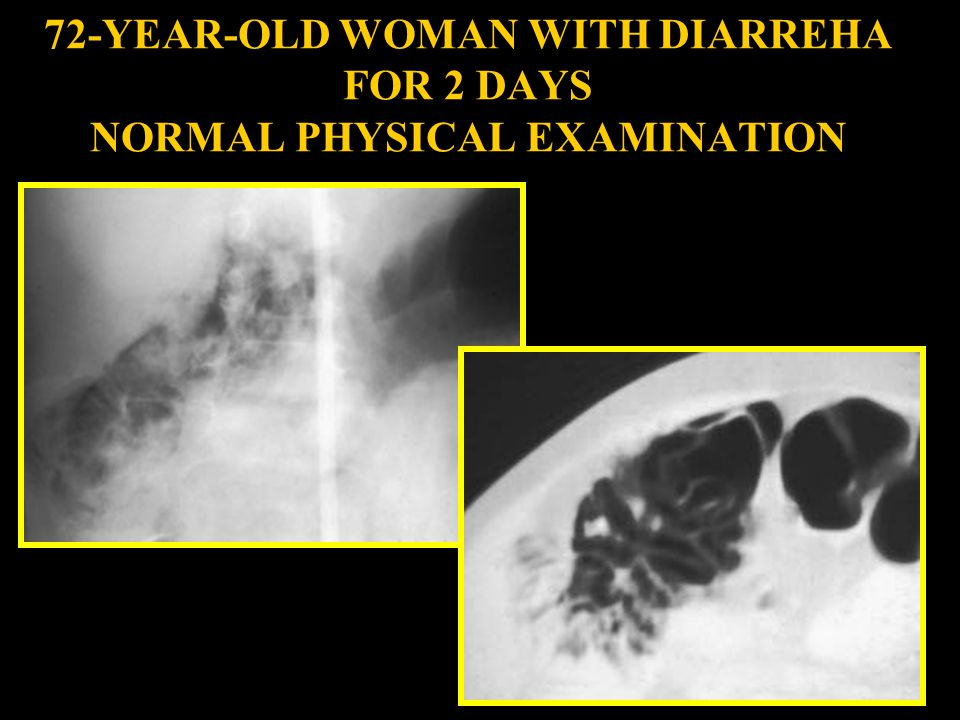 72-YEAR-OLD WOMAN WITH DIARREHA FOR 2 DAYS NORMAL PHYSICAL EXAMINATION