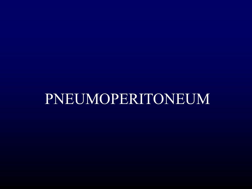 PNEUMOPERITONEUM