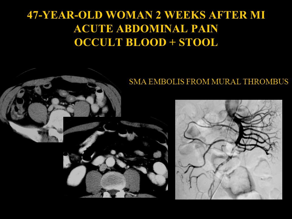 47-YEAR-OLD WOMAN 2 WEEKS AFTER MI ACUTE ABDOMINAL PAIN OCCULT BLOOD + STOOL