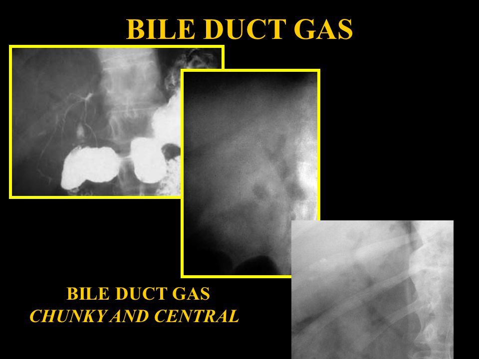 BILE DUCT GAS BILE DUCT GAS CHUNKY AND CENTRAL