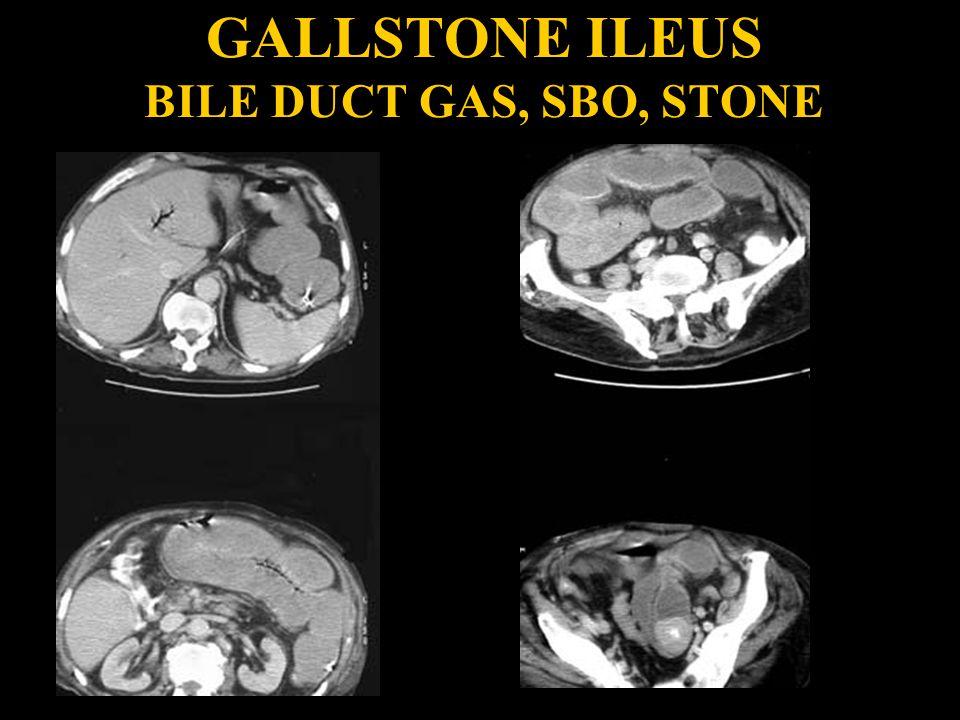 GALLSTONE ILEUS BILE DUCT GAS, SBO, STONE